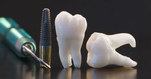 implantátumok