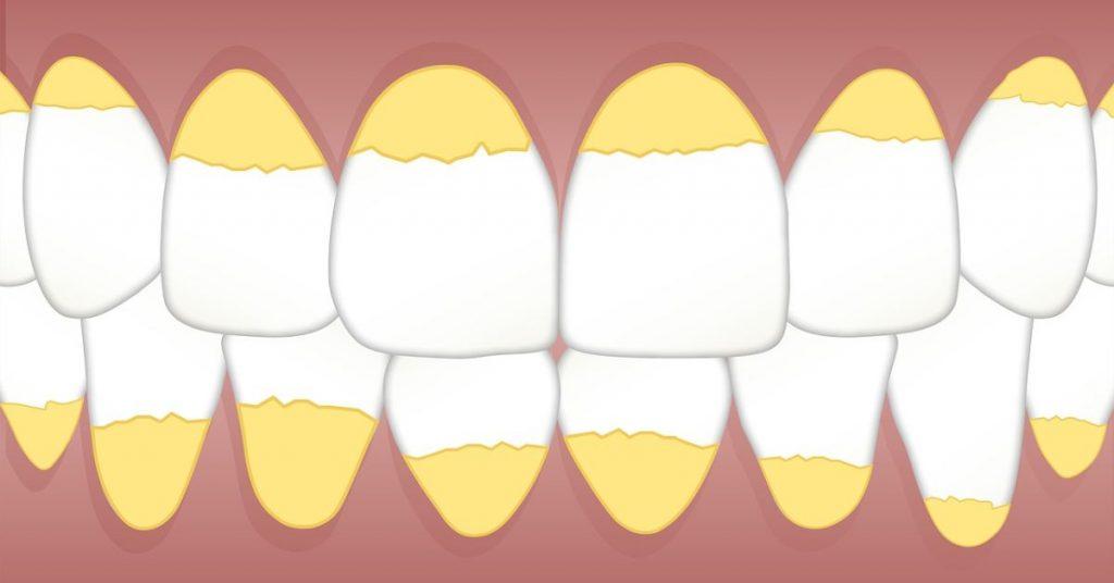 fogkő-eltávolítás